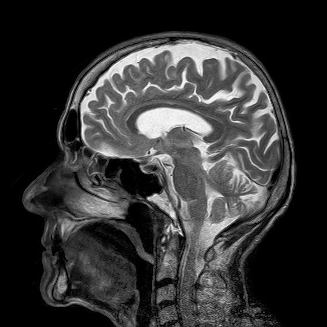 MRI; scan mozgu; umela inteligencia